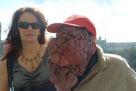 Non un mostro, ma il risultato di un tumore alla faccia non curato per