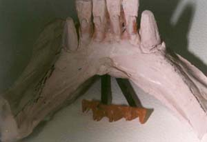preparing teeth to receive a removable partial denture pdf