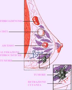 papilloma al seno sintomi)