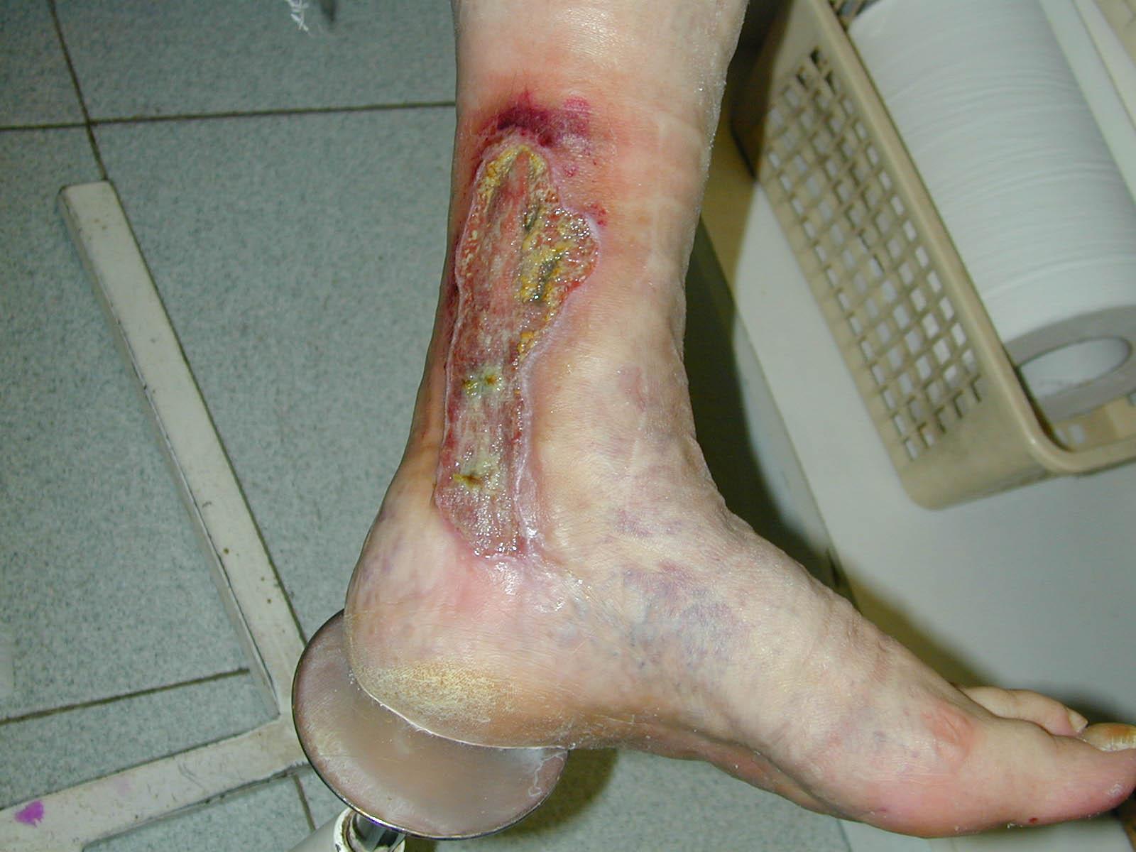 Eliminazione di varicosity che sta in Ekaterinburg